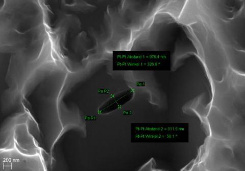 Abbildung: Titanimplantat - Vergrößerung 50k